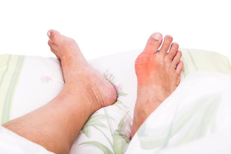 Gout and Cayenne Peppers –Highly Effective Gout Remedies at goutpatients.com!
